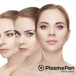 Formación Plasma Pen