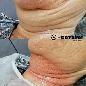 Tratamiento de remodelado y rejuvenecimiento de cuello